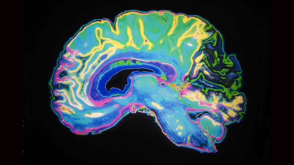 Neurolaw Club Newsletter